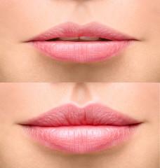 Costo filler acido ialuronico labbra